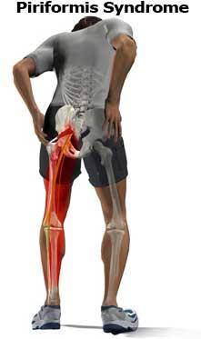 Тазобедренный сустав и боль в ногах 99
